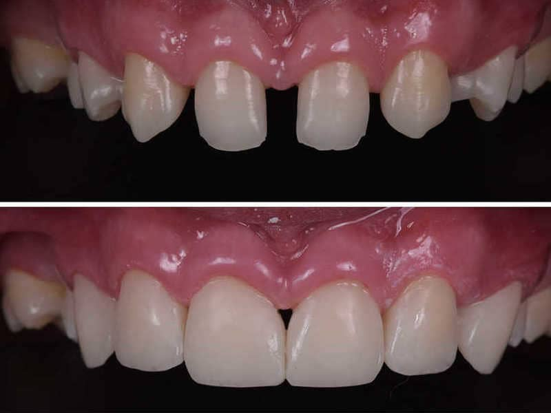 Стоматологический набор Uveneer фото-2